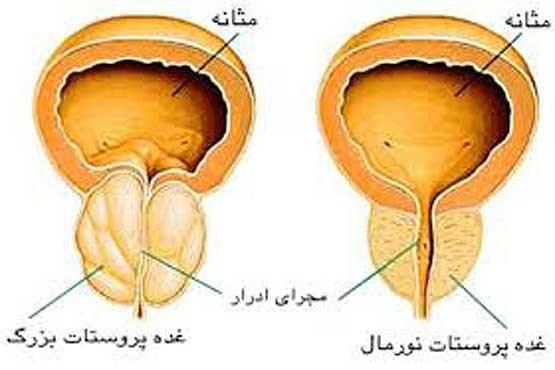 تورم پروستات هایپرتروفی سرطان