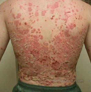 پسوریازیس Psoriasis
